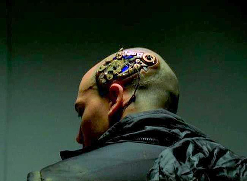 electronic implant